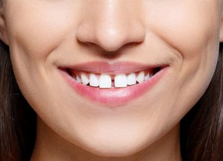 Gap Between Front Teeth Astrology