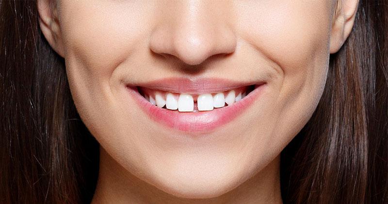Gap Between Front Teeth Astrology