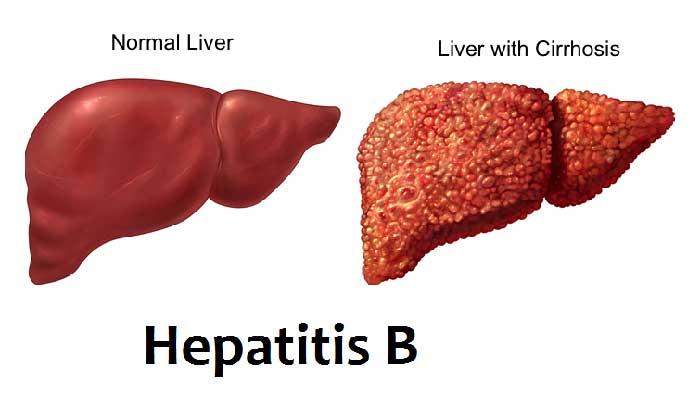 hepatitis b ke lakshan