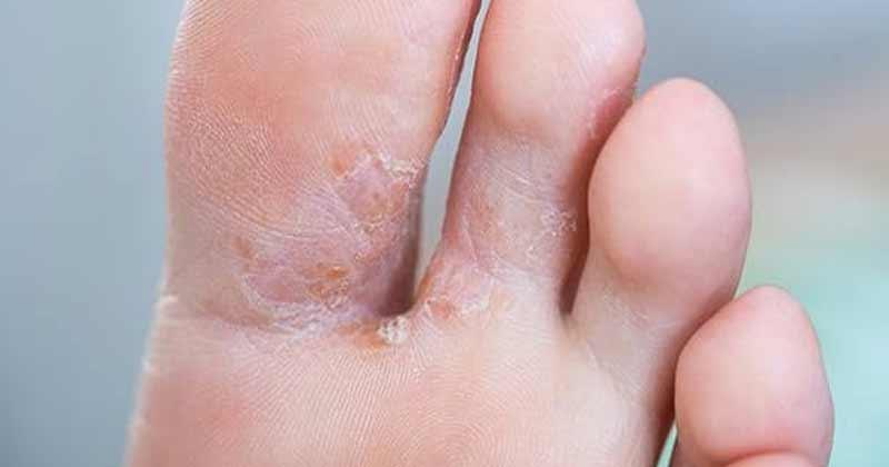 Fungal Infection Ka Ilaj
