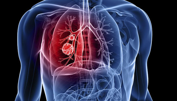 lung cancer se bachne ke upay