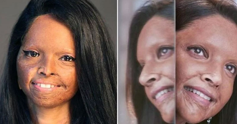 acid attack survivor laxmi agarwal not happy with chhapaak film makers