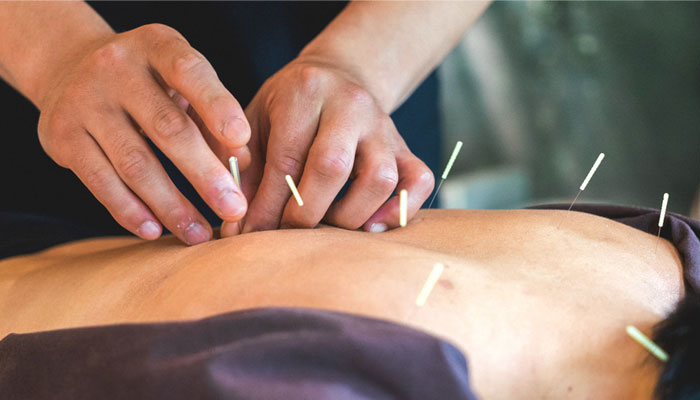 acupuncture therapy in hindi