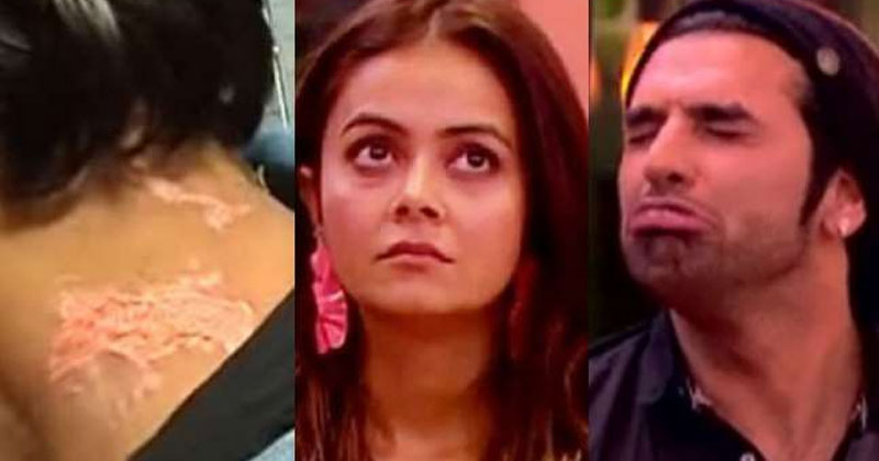 bigg boss 13 5 contestant injured in show