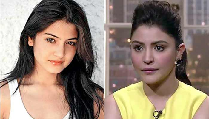Bollywood Actress With Plastic SurgeryBollywood Actress With Plastic Surgery