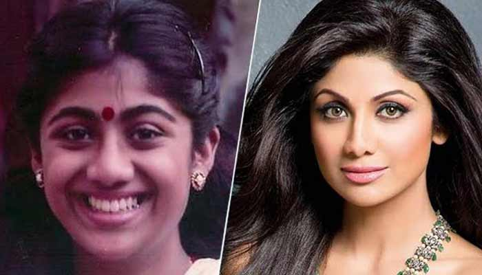 Bollywood Actress With Plastic Surgery