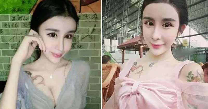 To Make Boy Friend Happy This Girl Is Doing Plastic Surgery