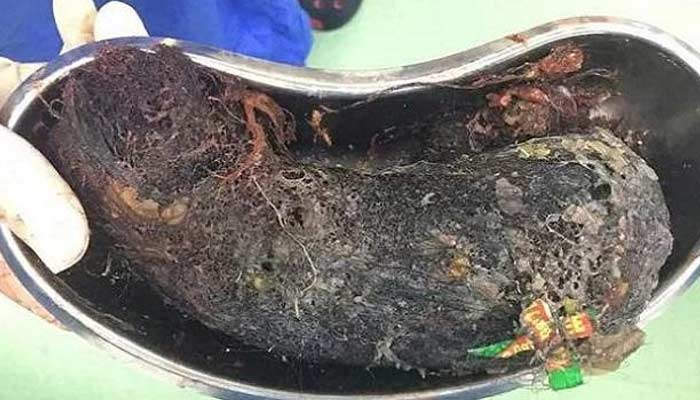 half kg human hair and empty shampoo packets removed from girl stomach