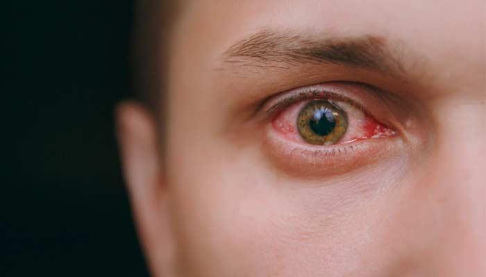 viagra eyesight side effects