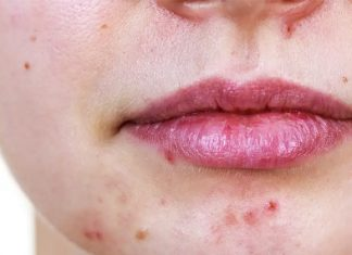dont try this 5 things on your skin