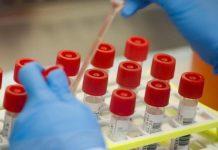 blood plasma therapy for coronavirus