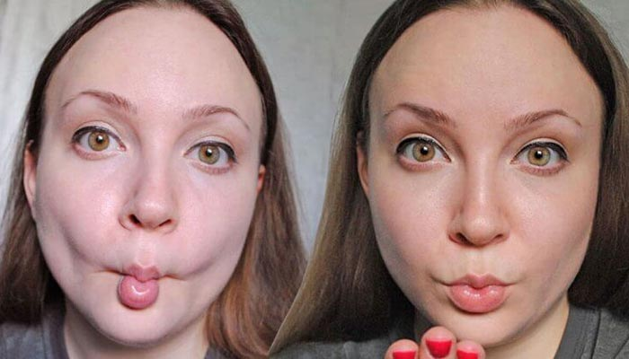Fish Face Roll Exercises