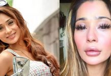 TV Actress who did Plastic Surgery