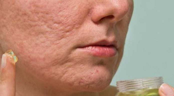 how to close open pores on face permanently