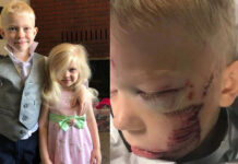 6 year old son survived brutal dog and saved her sister
