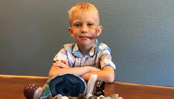 6 year old son survived brutal dog