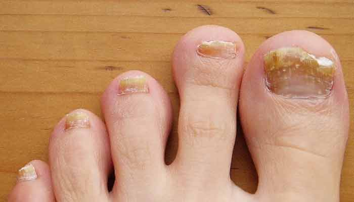 Nail fungus - Remedies for Fungal Infection In Hindi