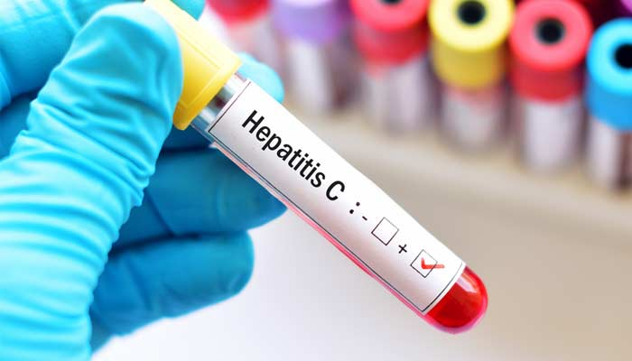 Scientists Discovered Hepatitis C