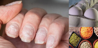 Healthy Diet For Nails In Hindi