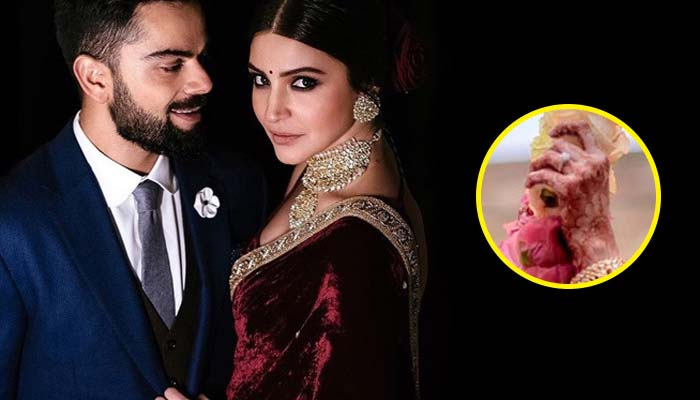 Anushka Sharma - Bollywood Celebrities Expensive Engagement Rings
