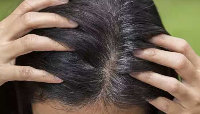 Grey Hair Remedies - Home Remedies For Grey