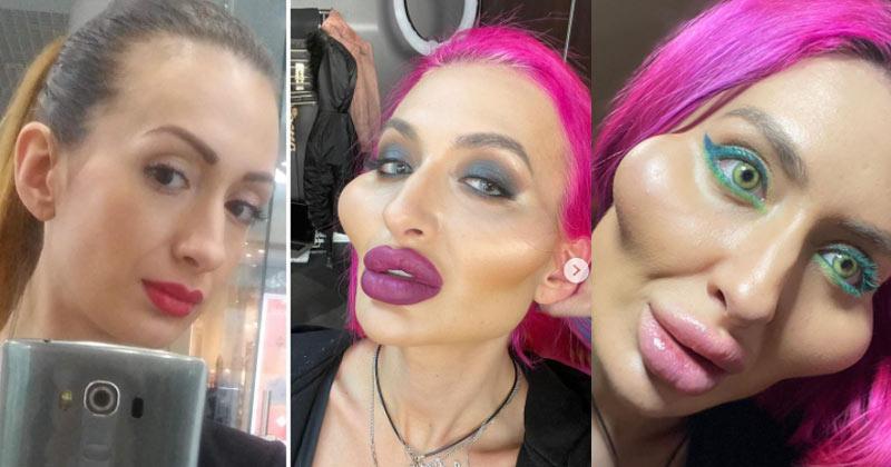 Ukranian Model claims biggest cheeks
