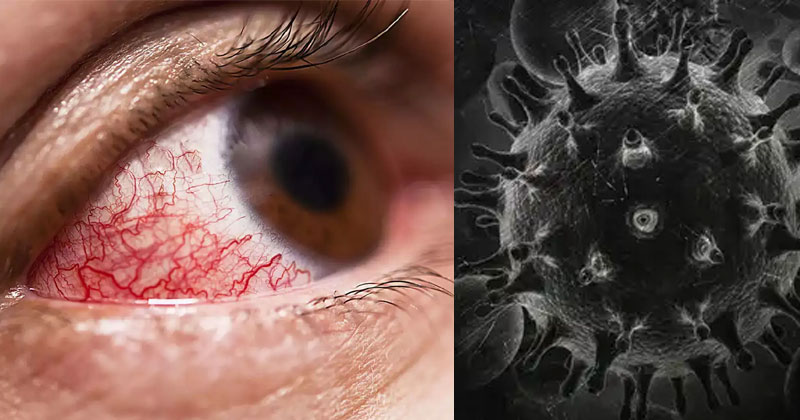 Black Fungal Infection Symptoms In Hindi